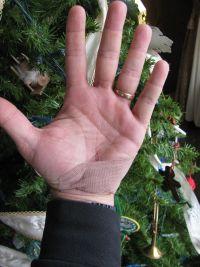 hand-wound.jpg